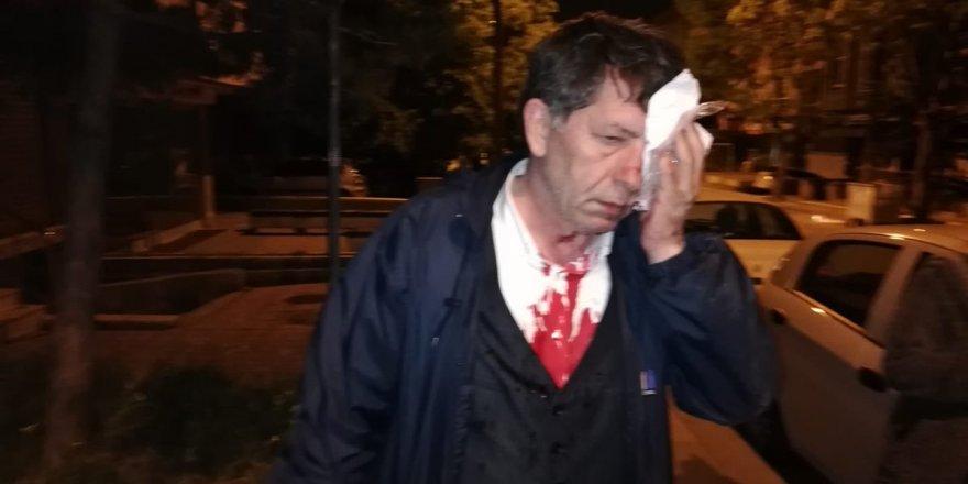 Deneyimli gazeteci saldırıya uğradı
