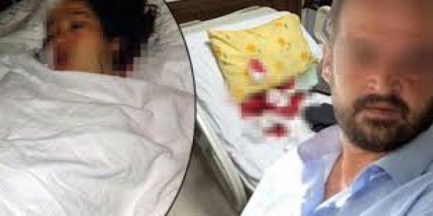 Cani koca doğum yapan eşini hastanede bıçakladı