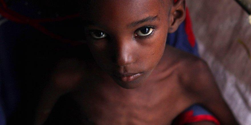 Dünyada Açlığa Bağlı Olarak Her Gün 25 Bin Kişi Yaşamını Yitiriyor