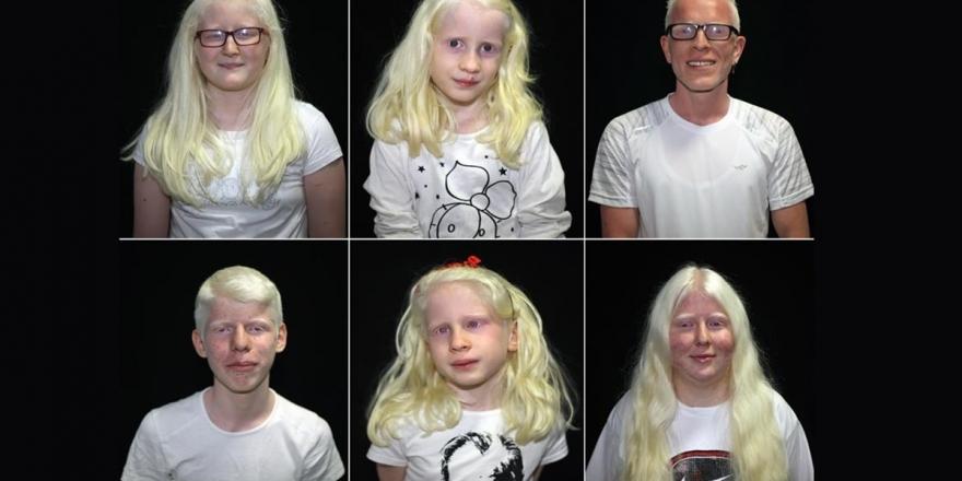 Dünyanın Genetik 'Beyaz'ları: Albinoslar