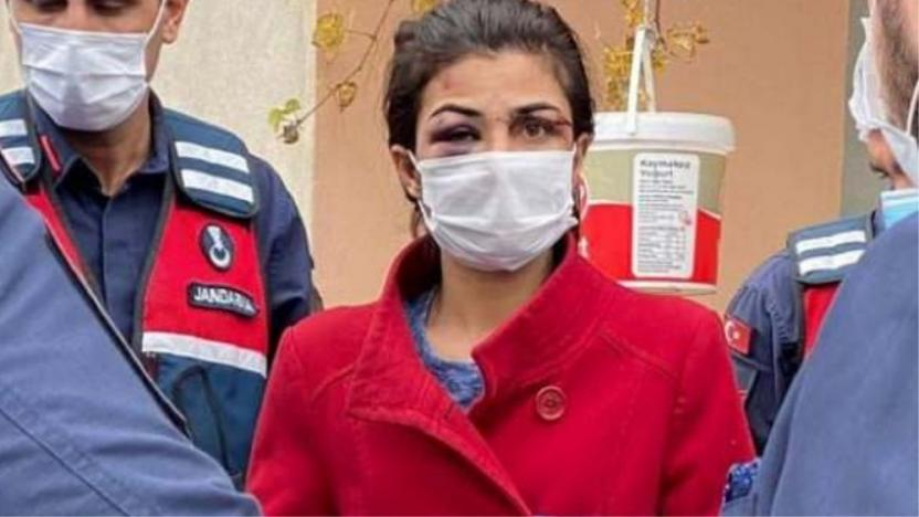 Antalya'da kendisini darbeden kocasını öldüren kadın tutuklandı